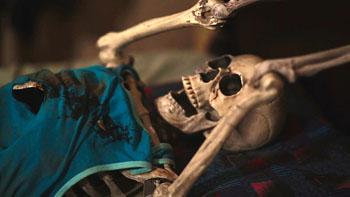 erodditys skeleton