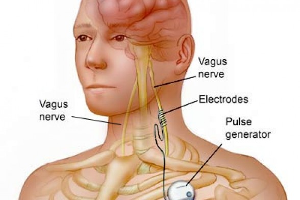Vagus Nerve Stimulation - New Treatment For Bulimia