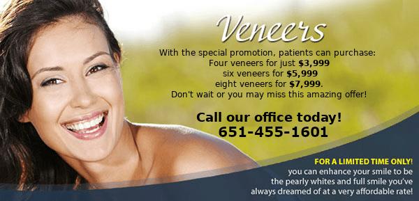 Veneers Special