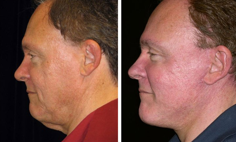 Male Face Lift