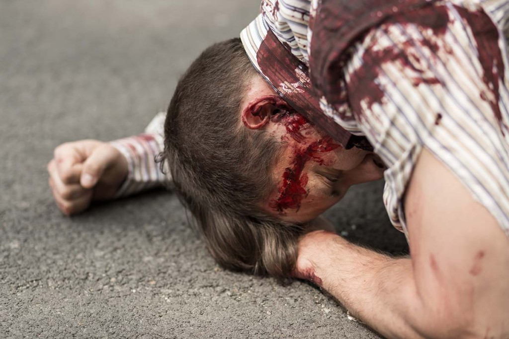 Mass Casualty Incident Victim