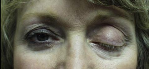 droopy-eyelid