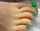 7 – Green Toenails