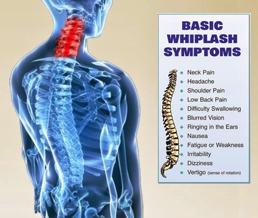 Whiplash injury spine graphic
