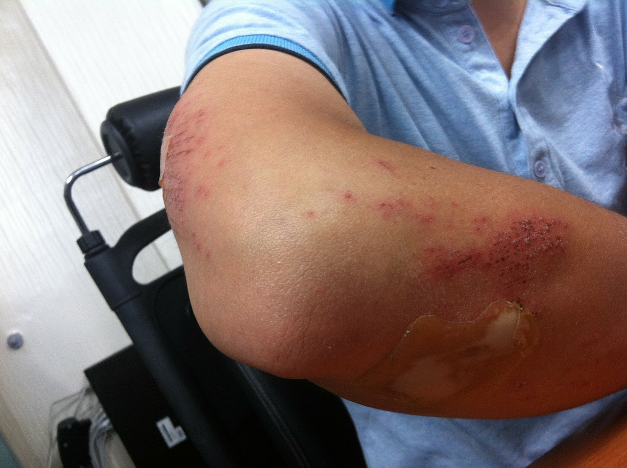injury from accident