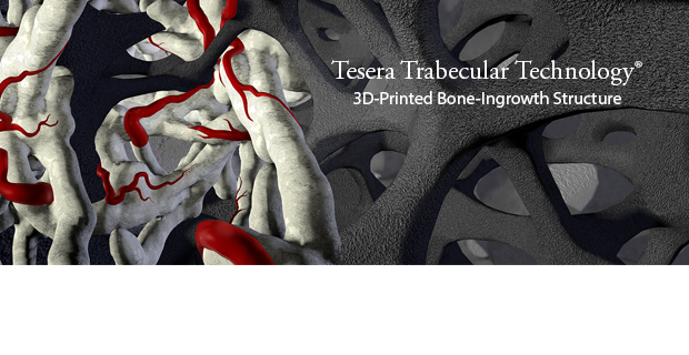 Tesera Trabecular Technology