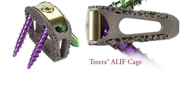 Tesera SA Stand-Alone ALIF Cage System