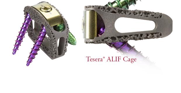 Tesera SA Stand-Alone ALIF Cage System