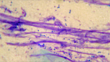Bacterial (staph) infections (tiny purple dots pictured above) are very common secondary to allergies and various other skin conditions.