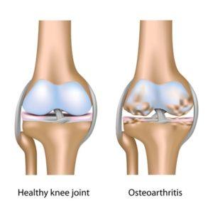 Stem Cell Knee Repair
