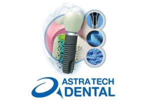 Astra dental implant