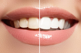 32DDental Teeth Whitening