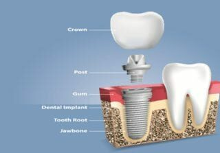 Implant 32Dental