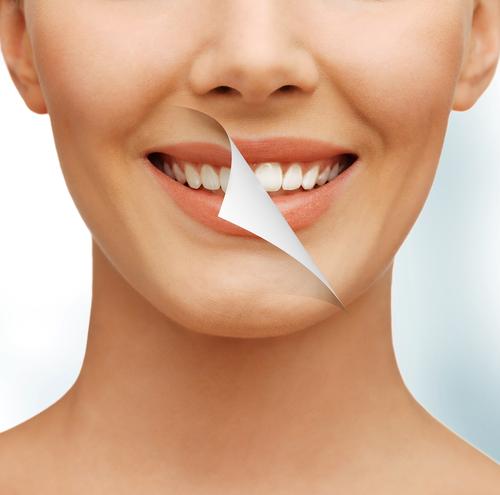 dental whitening aldan