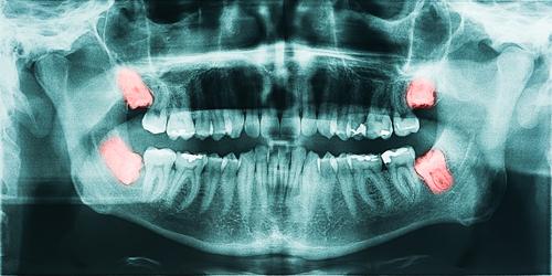 wisdom tooth extraction aldan