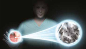 Cellvizio - laser endomicroscopy Barrett's esophagus