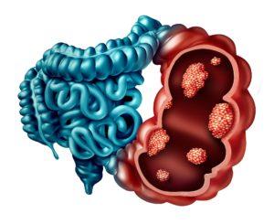 Colon Cancer Causes
