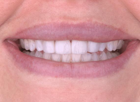 dental veneers Colorado Springs CO