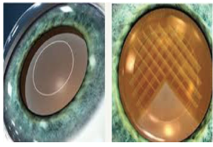 Cataract Surgery Femtosecond Laser Cataract Removal