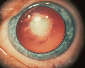 Congenital or Polar Cataract