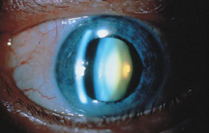 Nuclear Sclerotic Cataract
