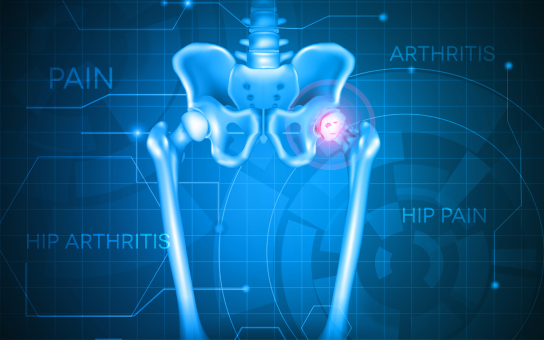 Understanding Arthritis of the Hip and How To Treat It