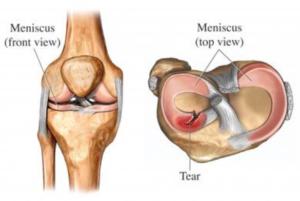 meniscus tear