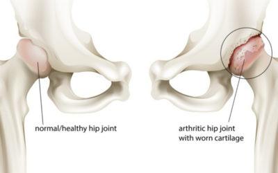 4 Hip Osteoarthritis Treatment Options