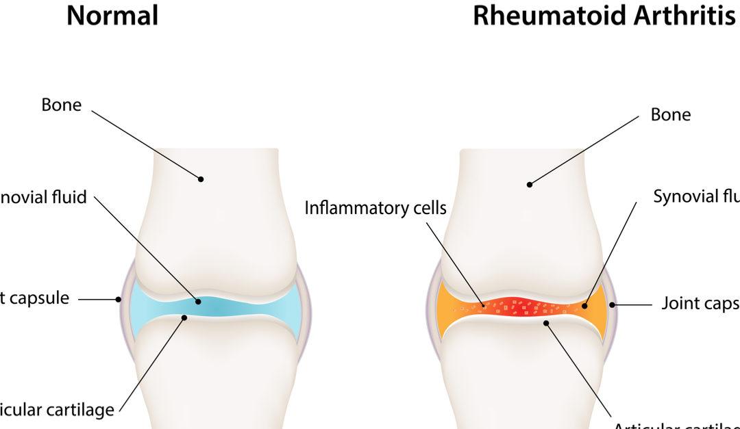 rheumatioid arthritis