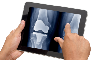Total Knee Replacement: Process, Recovery and Results