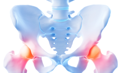 3 Common Hip Injuries – and How to Treat Them