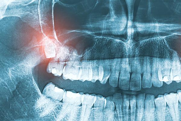 Pleasant Dental