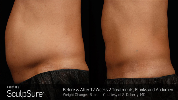 BA_More_Sculpsure_1