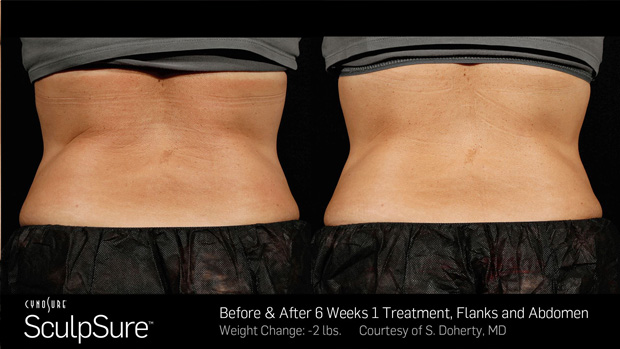 BA_More_Sculpsure_3