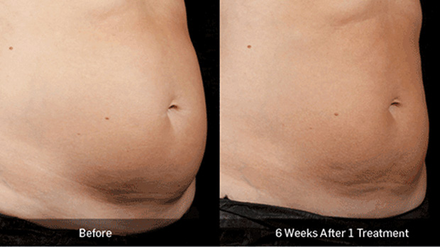 BA_More_Sculpsure_5