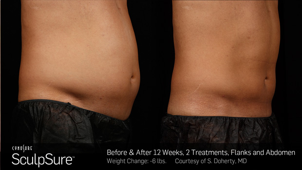 BA_More_Sculpsure_9