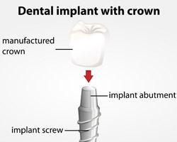 Nipomo-Family-Dentistry---Dental-Implant-Nipomo---implant