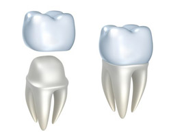Nipomo Family Dentistry - Dental Work Nipomo - CAP