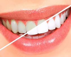 Nipomo Family Dentistry - Whitening Teeth Nipomo - white-