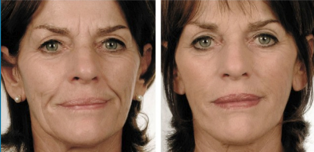 Botox Cosmetic Injections Greater Boston | Newton MA