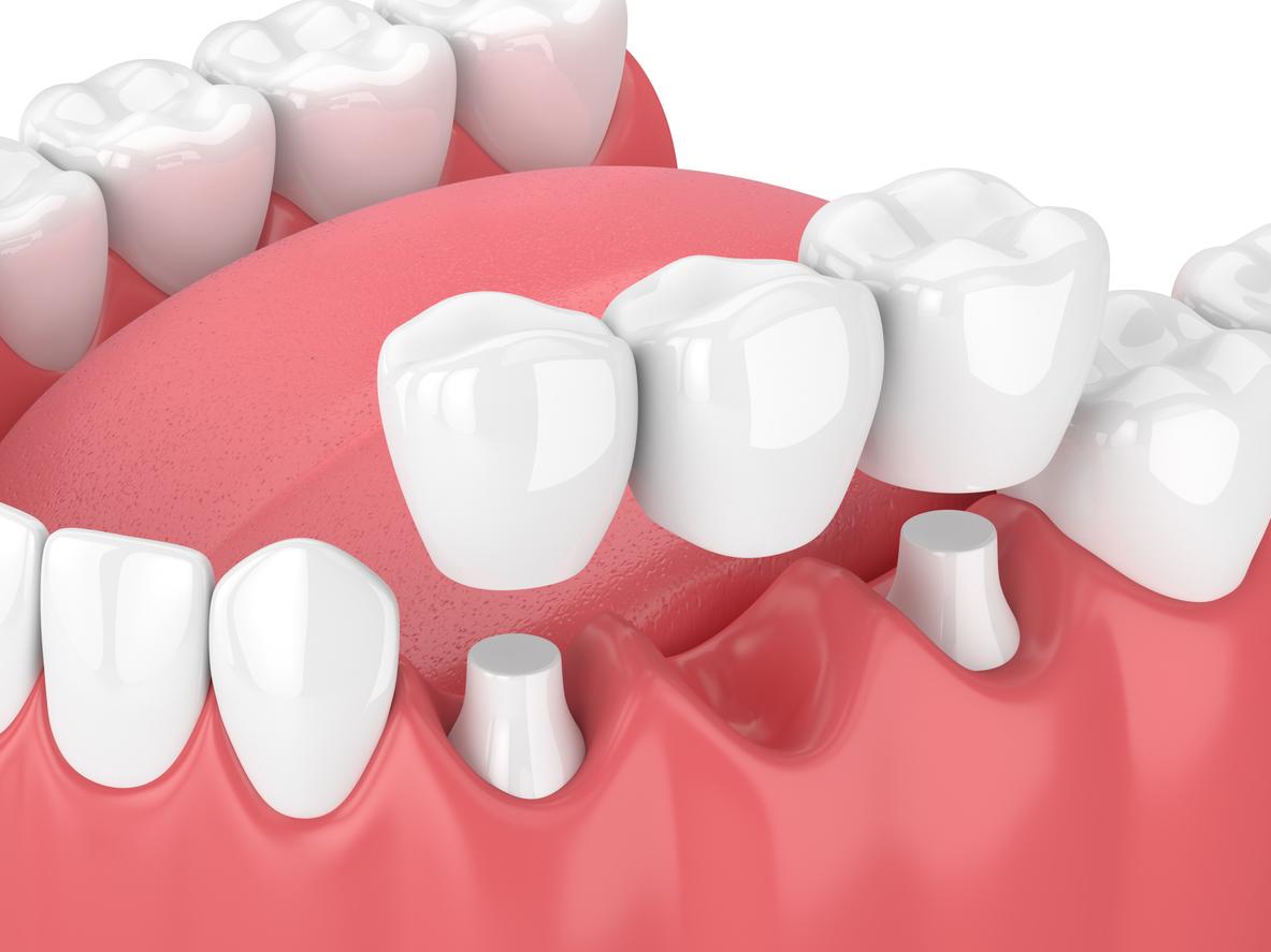 Bridges | Cosmetic Dentistry Center
