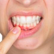 cause bleeding gums