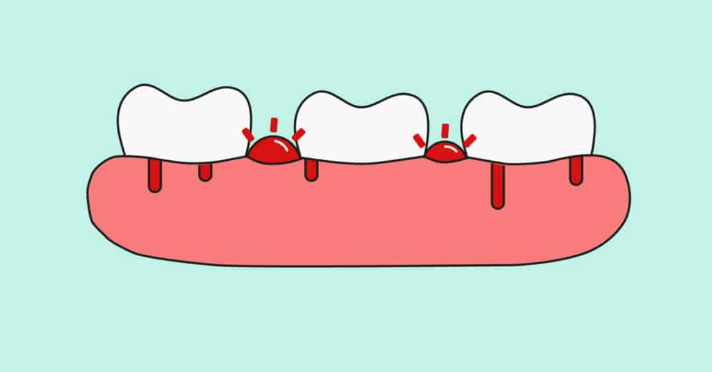gingivitis bad breath