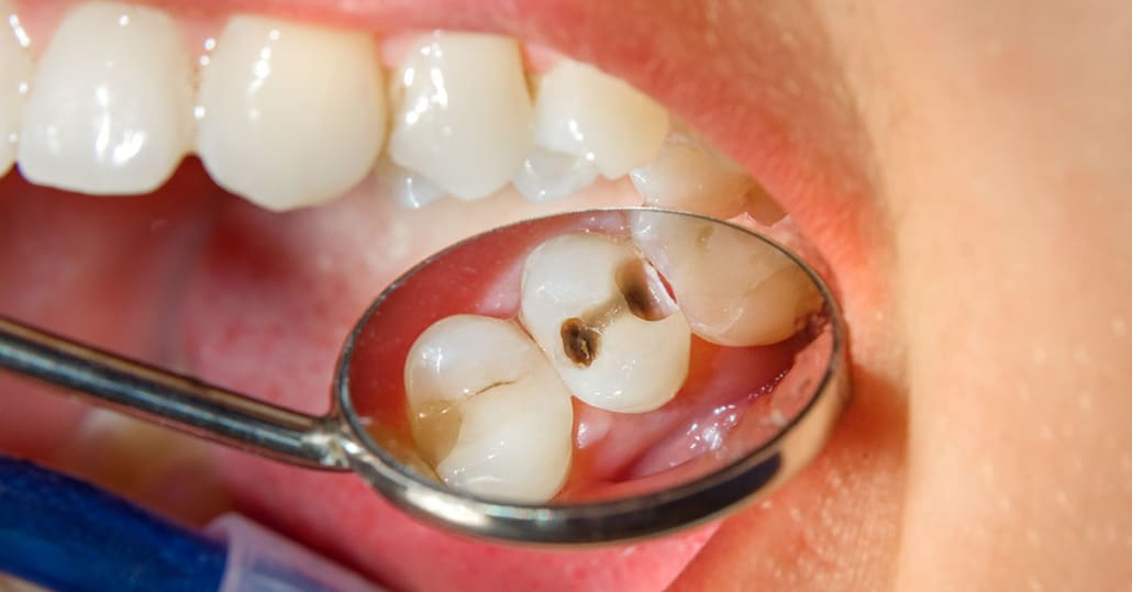 cavities and bad breath