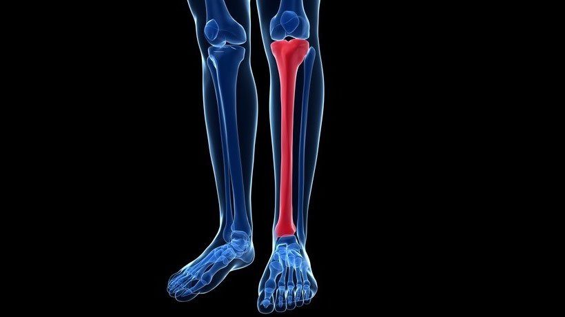 Shin Splints: Causes, Prevention and Treatment