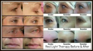 Red light therapy before and after image