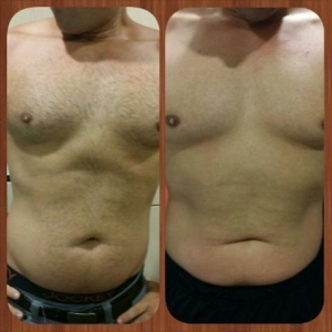 ultrasonic fat cavitation before and after