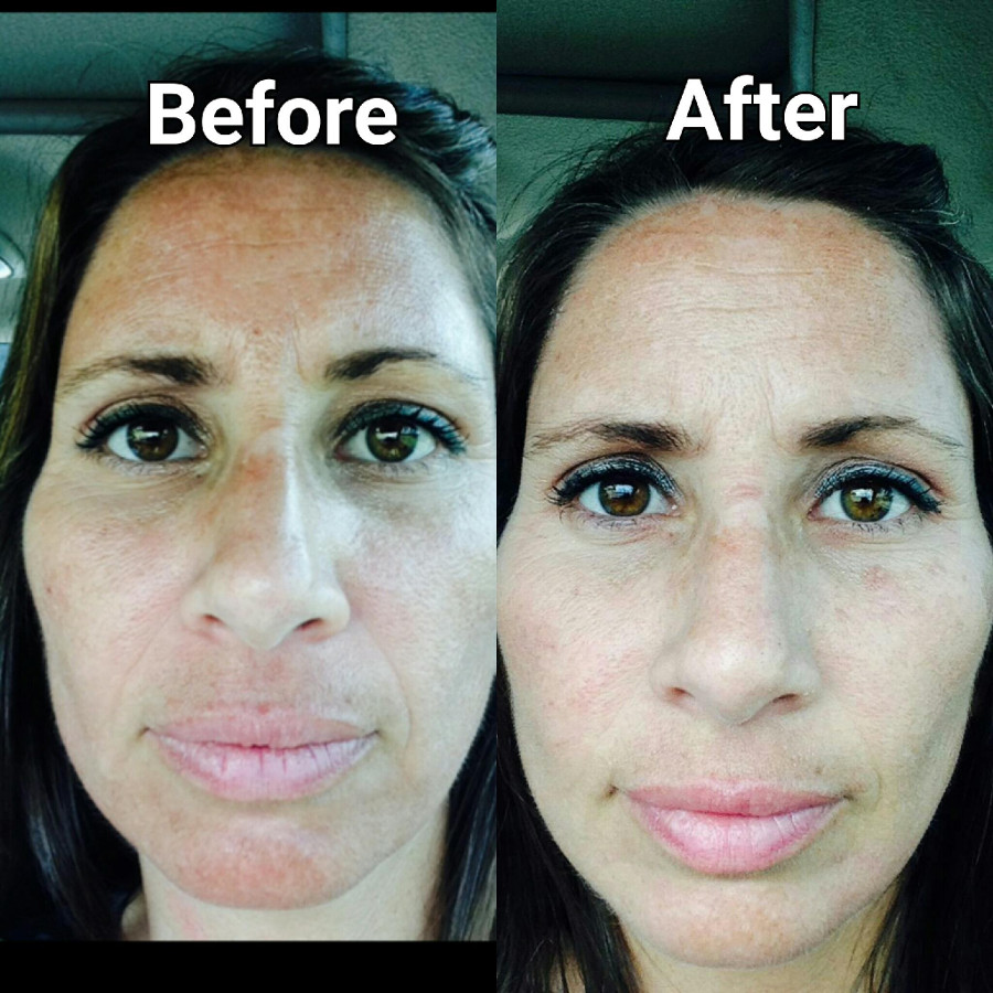perfection lift before and after