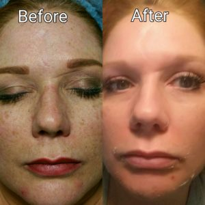 image perfection lift removed acne and freckles