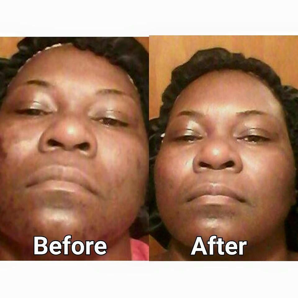 perfection lift chemical peel before and after at our tampa spa